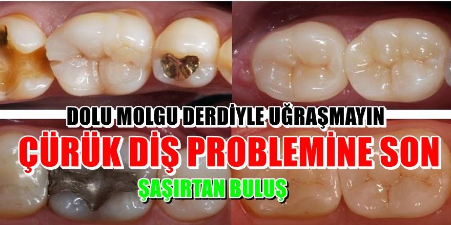 Çürük dişleri tedavi eden hap bulundu!
