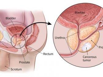 Dünya Prostat Kanseri Farkındalık Günü