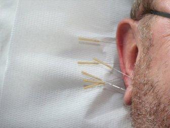 Alzaymırda Anksiyete ve Depresyona 'Akupunktur' Freni