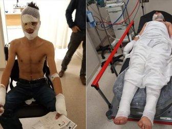 Evi Kundaklamaya Çalışırken Kıyafetlerinin Tutuşması Sonucu Yaralandılar