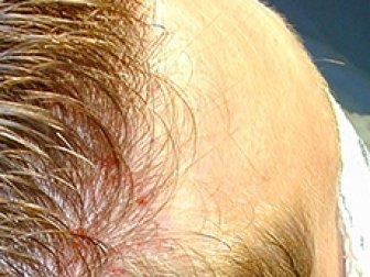 Saç Ekimi Hakkında Bilmedikleriniz