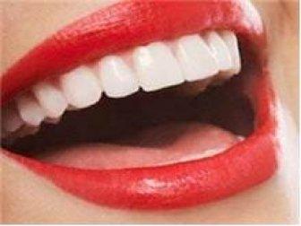 Gülüş Estetiğinde Son Yöntemler ve Uygulamalar