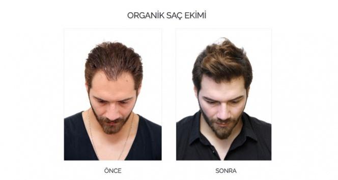 Depresyondaki saçlara organik çözüm
