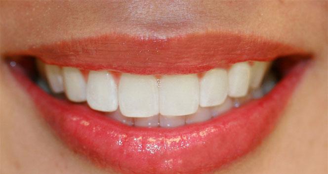 Diş sıkma alışkanlığına dikkat!