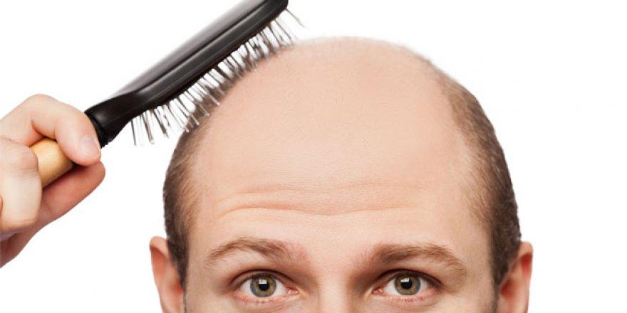 Saç dökülmesine sebep olan o nedenler!