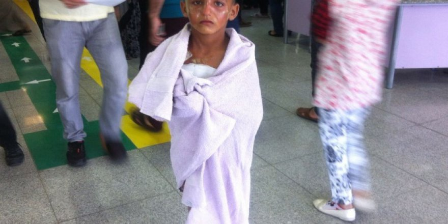 Şanlıurfa'da üzerine kaynar su dökülen çocuk hastaneye yürüyerek girdi