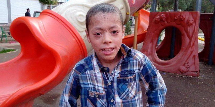 Lamellar İktiyozis Hastası Küçük Melih'in Hayali Gerçek Oldu