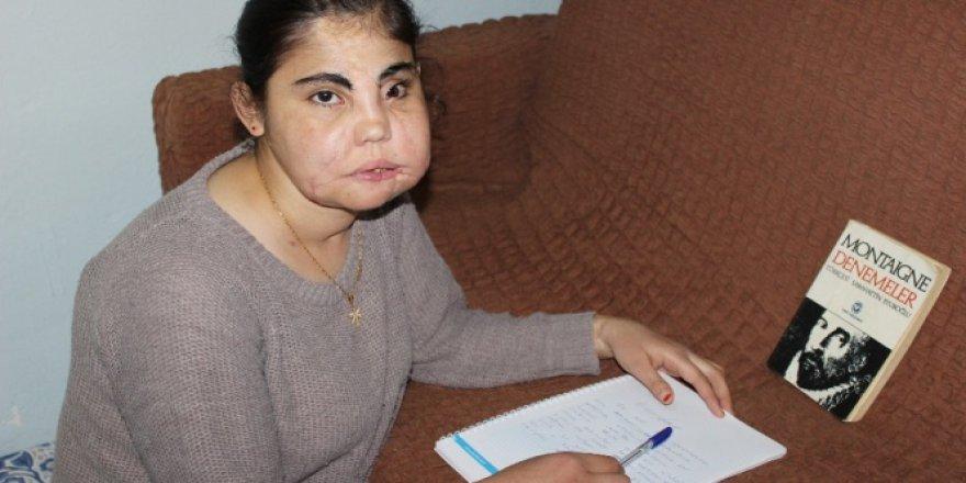 Türkiye'nin yüz nakli yapılan ilk kadını Hatice Nergis hayatını kaybetti