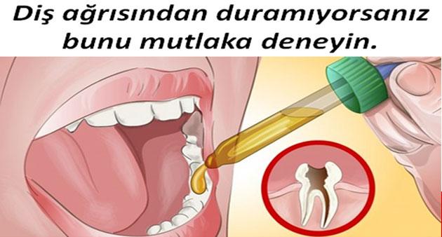Diş Ağrısından Duramıyorsanız bir de bunu deneyin