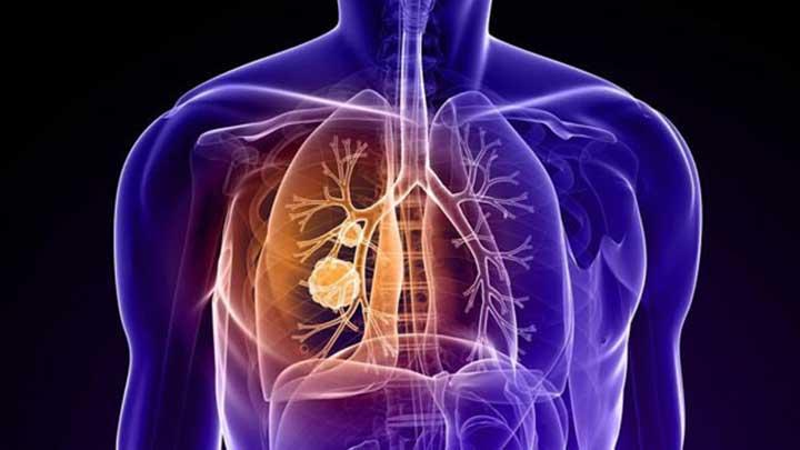 Akciğer Kanserinde Mavi Boya Ile Erken Teşhis Devrimi