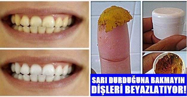 Sarı Durduğuna bakmayın! Bu baharatın sadece 1 gramı bile Dişleri Kar Beyazı Yapıyor!