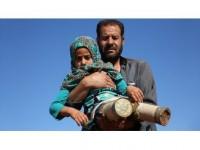 Suriyeli Maya Protez Tedavisi İçin İstanbul'da