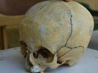 Statülerini Göstermek İçin Kafataslarının Şekli Değiştirilmiş