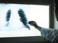 Hekime Giden Hasta Yanında Film Taşımayacak