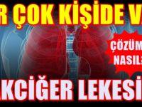 Akciğer lekesi ihmale gelmez! Mutlaka Dikkate alın