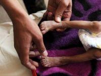 WHO: 'Yemen Halkının Yüzde 80'i Yardıma Muhtaç'