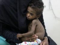 Lancet: 'Obezite ve Beslenme Yetersizliği Küresel Salgın'