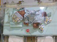 Her Yıl 15 Milyon Bebek Hayata Erken Başlıyor