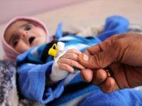 UNICEF: 'Yemen'de 12 Milyon Çocuk Acil Yardıma Muhtaç'
