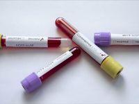 Çinli Araştırmacılar koronavirüs Salgınında yeni bilgi tespit etti