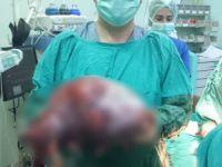 Konya'da Yaşayan Bir Karnından 10 Kilogram Kitle Çıkartıldı
