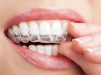 Diş Teli Takmak istemeyenlere müjde