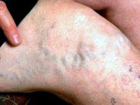 Varis Sağlığı Tehdit Ediyor! İşte Varis Belirtisi ve Tedavisi