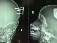 Doktorlar Çocuğun Röntgenine Bakın Dehşete Düştü