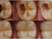 Diş Çürümesini Durdurmanın en basit yolu! 1 tutam sür bırak